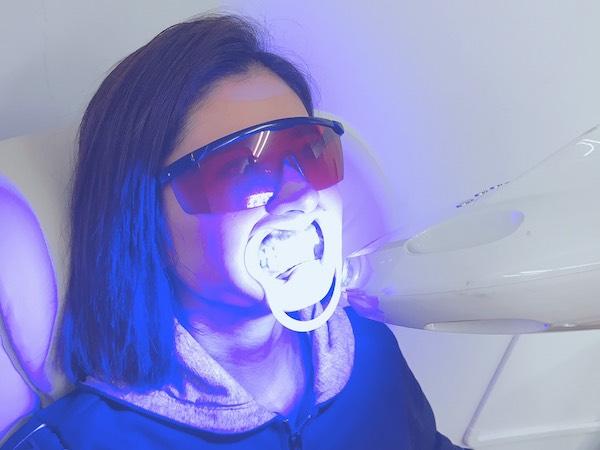 LED照射_セルフホワイトニング流れ