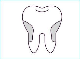 歯石を除去する