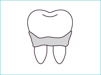 歯石の沈着を防ぐ